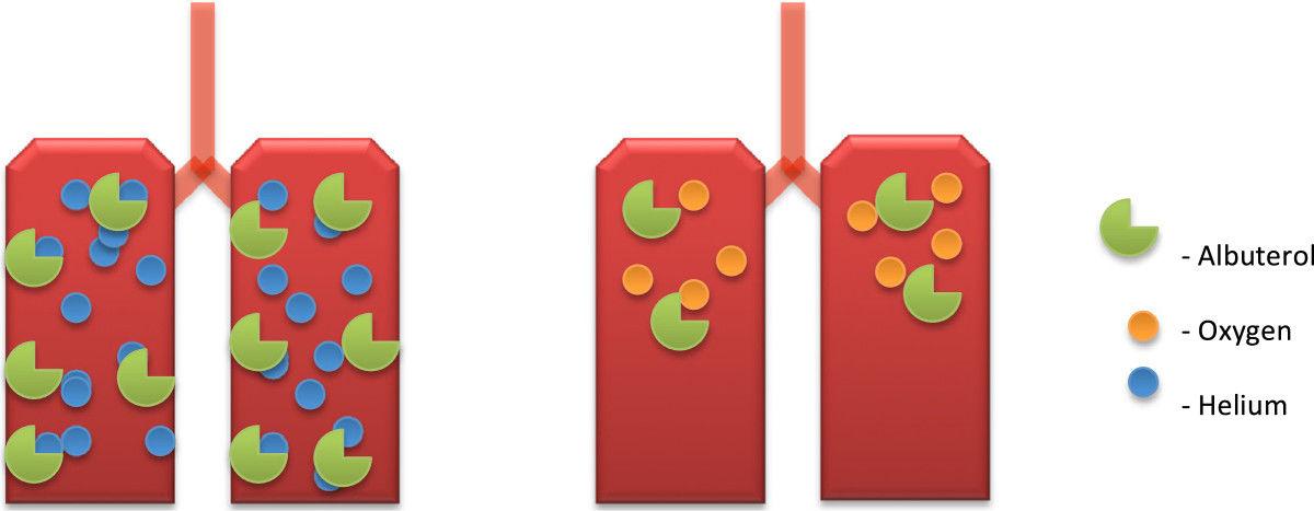 Ứng dụng khí Heli trong hệ hô hấp